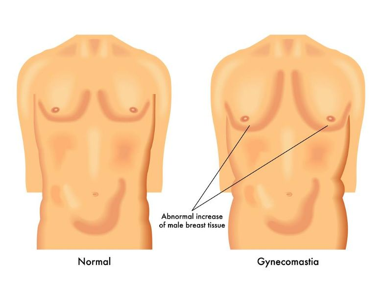How gynecomastia looks like
