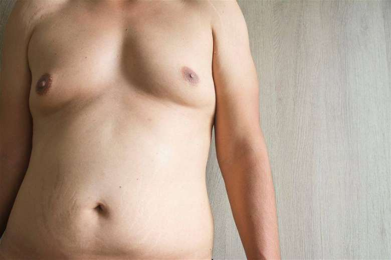 How pseudogynecomastia or chest fat looks like